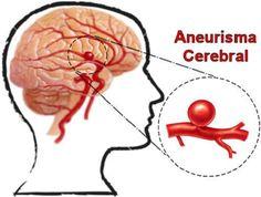 Cómo detectar y prevenir aneurismas.-
