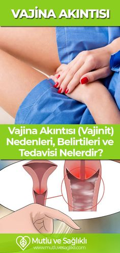 Vaginal discharge is normal and occurs in every woman. It is completely normal to have fluid secreti Kandi, Diet And Nutrition, Detox, Health Fitness, Medical, Weight Loss, Women, Health, Women's