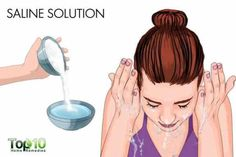how to get rid of allergic conjunctivitis fast