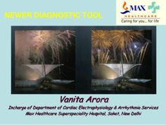 Dr Vanita Arora is a Senior Consultant Cardiac Electrophysiologist & Interventional Cardiologist, Cardiac Electrophysiology Lab and Arrhythmia Services, 3D Mapping Radio frequency Ablation of the Complex Arrtymias and Arrhythmia Cardiac Diagnosis in India.