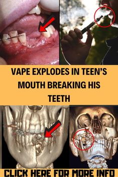 Vaping seems to be a phenomenon with the teens of today. Diy Crafts Life Hacks, Weird World, Vaping, Weird Facts, Celebrity Gossip, Love Life, Confessions, Funny Jokes, Teen