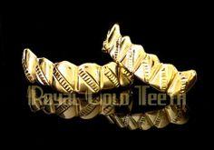Type Top & Bottom Grillz - Yellow Gold Grillz Model TBY-702 Price $350 Description 10k 6pc top + 6pc bottom