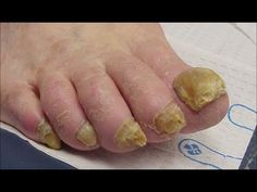 Watch This Video Mind Blowing Home Remedies for Toenail Fungus that Really Work Ideas. Astonishing Home Remedies for Toenail Fungus that Really Work Ideas. Fingernail Fungus, Toenail Fungus Remedies, Fungal Nail, Eczema Remedies, Home Remedies, Natural Remedies, Listerine, Infection Fongique, Thick Toenails