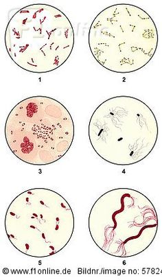 Bacteria smears of germs for microbiological diagnosis, microscope slides, clinical microbiology, state of scientific research around 1915, 1: Diphtheria or Corynebacterium diphtheriae, 2: Diphtheria or Corynebacterium diphtheriae, 3: Yersinia pestis, 4 Salmonella Typhi, 5: Vibrio cholerae, 6: Spirillum iblhdf02266033