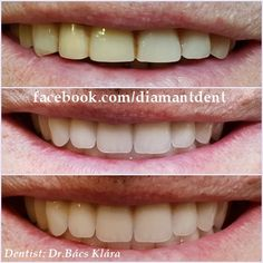 New Smile, new life 🙂 Have a Bright smile! Dental Bridge,Crowns Diamant Dent New Smile, new life :] Have a Bright smile! Teeth Implants, Dental Implants, Dental Bridge Cost, Dentist Day, Dental Crowns, Health Day, Cosmetic Dentistry, Health Problems