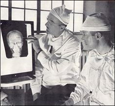 1. lobotomizar lobotomizado lobotomizacion walter feeman radiografia cerebro antigua vieja cirugia neurologia neurocirugia pica hielos enfermos psiquicos tac investigacion cancer quiste cerebelo lobulo