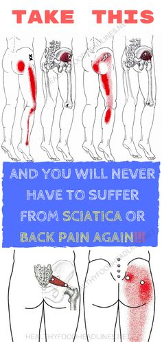 TAKE THIS AND YOU WILL NEVER HAVE TO SUFFER FROM SCIATICA OR BACK PAIN AGAIN!