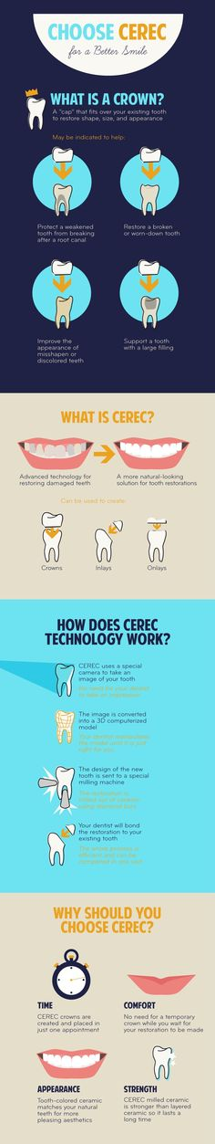 What is Cerec, and why choose it? Dr. Chelsea Perry www.edcwestboro.com