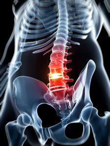 85 Ideas De Hernia Discal Y Otros Problemas De Espalda Hernia Discal Hernia Dolor De Espalda