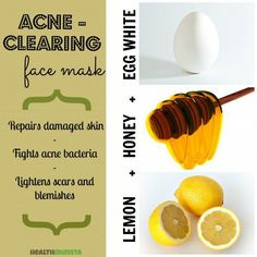 Potent egg white face mask with honey and lemon juice. Purpose: Anti-acne