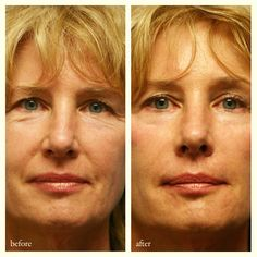 Dermal filler injections are used to rejuvenate your aging skin and smooth away facial wrinkles and folds