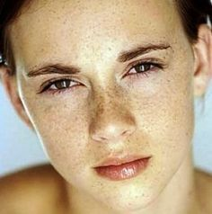 9 Best Homemade Dark Spot Remover Dark Spots On Face, Brown Spots, Home Remedies For Skin, Health Remedies, Pimples On Face, Skin Clinic, Face And Body, Beauty Skin, Natural Skin Care