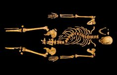 This skeleton found beneath a parking lot in England belonged to Richard III, who ruled England in the 15th century. The bones show his curved spine and reveal the injuries that killed him. Credit: Univ. of Leicester