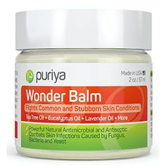 BEST Antifungal Balm, Natural formula for Athletes Foot, Ringworm, Jock Itch and Fungal Infections. Effectively Soothes Itchy, Scaly or Cracked Skin. Better Than OTC Treatment. Satisfaction Guarantee - Products Lists of Tools and Hardware Psoriasis Treatment Cream, Toenail Fungus Treatment, Ayurveda, Toenail Fungus Cure, Toe Fungus, Feet Treatment, Fungal Infection, Products, Health