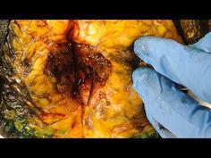Breast Cancer (Breast Tissue, BRCA genes, Biopsy, Lumpectomy, Mastectomy, Mammogram, & Treatment) - YouTube
