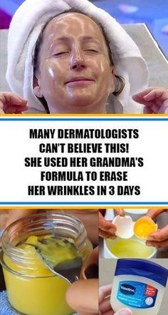 Do you have problems with wrinkles? If you are annoyed with all those expensive creams and beauty treatments, here in this article we offer you this natural recipe that will help you get rid of the wrinkles, even those ones in the most problematic areas. Fitness Workouts, Wrinkle Remedies, Face Wrinkles, Face Skin Care, Wrinkle Remover, Tips Belleza, Health And Beauty Tips, Healthy Beauty, Health Tips