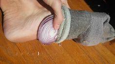 Les oignons ont le pouvoir de soigner un rhume ou d'autres symptômes liés à la fièvre. Comment ? En mettant une tranche d'oignon dans vos chaussettes pendant toute une nuit  Source : Comment-Economiser.fr | http://www.comment-economiser.fr/oignons-dans-chaussette-remede-rhume.html