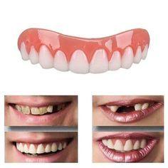 Veneers Teeth, Dental Veneers, Perfect Smile Teeth, Smile Smile, Fake Smile, Dental Cosmetics, Teeth Braces, Teeth Care, Cosmetic Dentistry