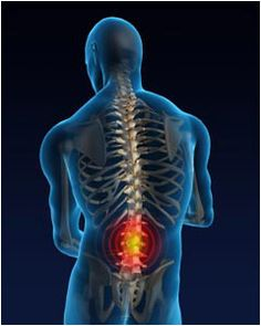 Symptoms Of a Herniated Disc  spinal injuries, Spinal Treatment Options, back health