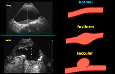 Sonographic occasional finding of sub-renal aortic saccular aneurysm in a man 75 y/o with worsening claudication, already undergone to coronary angioplasty and… Vascular Ultrasound, Ultrasound Tech, Aortic Aneurysm, Heart, Life, Human Anatomy, Hearts