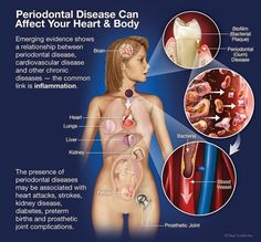 Dentaltown - Periodontal Disease can affect your Heart & Body!