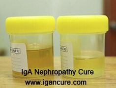 Nephrotic Syndrome patients often have massive proteinuria. Proteinuria can cause many other symptoms, such as edema, hypoproteinemia and hyperlipemia. How to reduce protein in urine for Nephrotic Syndrome?