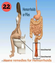 22 Home Remedies for Hemorrhoids | How to get rid of hemorrhoids with a natural hemorrhoid treatment