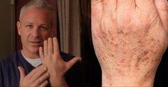 Médico americano recomenda: este truque simples eliminará rapidamente manchas na pele! Apenas 2 ingredientes! | Cura pela Natureza
