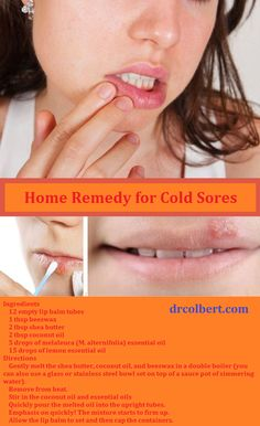 cold sore remedies 1000 images about health remedies 1 on 5721