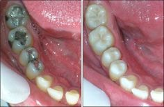 caries dientes