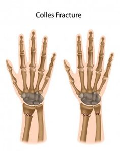 types of fractures in elbow, wrist and hand