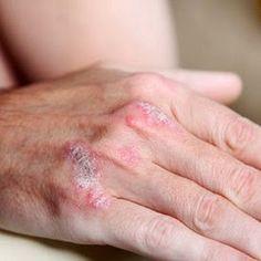 Fumaderm - treat psoriasis: the psoriatic arthritis