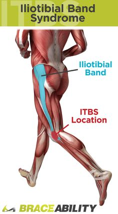 IT band syndrome is a leading cause of knee pain through the iliotibial band syndrome Runners Knee Pain, Knee Pain Exercises, Scoliosis Exercises, Workout Exercises, Iliotibial Band Syndrome, My Knee Hurts, It Band Syndrome, Fitness Models, Fitness Tips