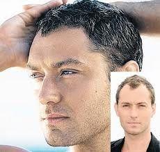 #hair #hairloss #alopecia #biotin #stop #hairshedding #vitaminsforhair #regrowthvitamins #hairproducts #arganrainoil #arganoil #arganrain #baldness #hairgrowth #hairregrowth #alopecia #alopeciatreatment #hairfall #hairshedding #baldness #baldnesstreatment #homeremediesfor hairloss #arganrainproducts #how #the #music #baldnessolution #healthy #beauty