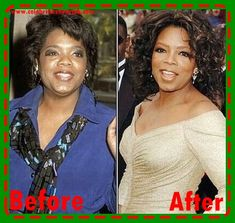 Oprah Winfrey Plastic Surgery Nose Job Pictures Through The Year With Surgeon Name