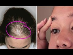 CASTOR OIL....This Oil Is Great For Thickening And Regrowing Hair, Eyelashes And Eyebrows - YouTube
