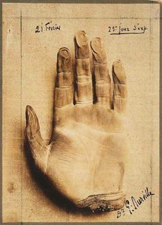 Gaston Durville, Hand of a Corpse Mummified by Mesmerism, 1913