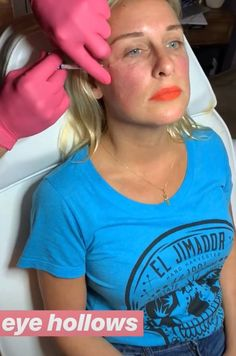 Call or text Facial Fillers, Lip Plumper, Skin Treatments, Nyc, Aesthetics, Twitter, Women, Products, Lips
