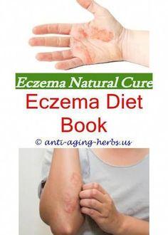 Sea salt bath for eczema.Eczema on face and neck.Lanolin for eczema - Eczema Cure. Eczema Causes, Severe Eczema, Eczema Symptoms, Orange County, Eczema On Eyelids, Face Eczema, Best Eczema Treatment, Home Remedies For Eczema, Beast