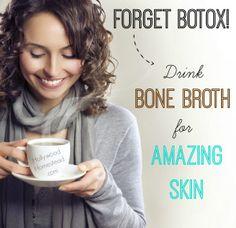 Forget Botox! Drink Bone Broth for Amazing Skin
