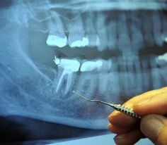 97% of Terminal Cancer Patients Previously Had This Dental Procedure...  ROOT CANAL