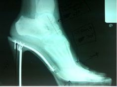 What those sky-high heels are doing to your feet!! foot health