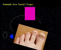 Homemade cure toenail fungus - Nail Fungus Remedy. You have nothing to lose! Visit Site Now