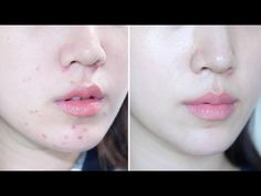 How To Get Rid Of Acne Naturally   Skin Transformation ❤ Liah Yoo - YouTube