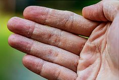 Eczema. When you have long-lasting, red, itchy rashes, it could be atopic dermatitis. What causes it? How is it treated?