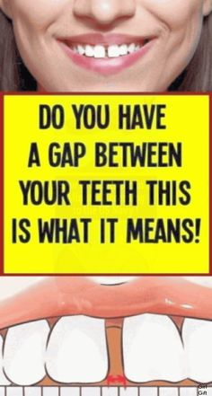DO YOU HAVE A GAP BETWEEN YOUR TEETH? THIS IS WHAT IT MEANS!.. Pms, Endocannabinoid System, Kidney Health, Women's Health, Heart Health, Health Care, Health Facts, Private Parts, First Tooth