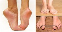 Aplica estos estiramientos fáciles de realizar para fortalecer los pies y combatir los problemas que puedas tener en éstos.