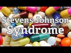 Resultado de imagem para síndrome de stevens johnson