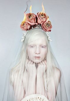 bruised-porcelain:    albino is so majestic
