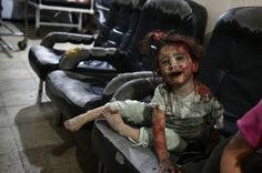 Injured child at the clinic in Douma